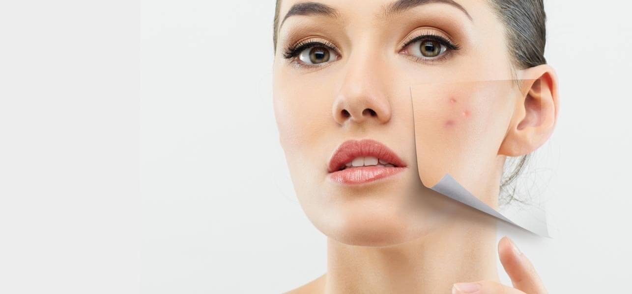 best home remedies for acne/pimples