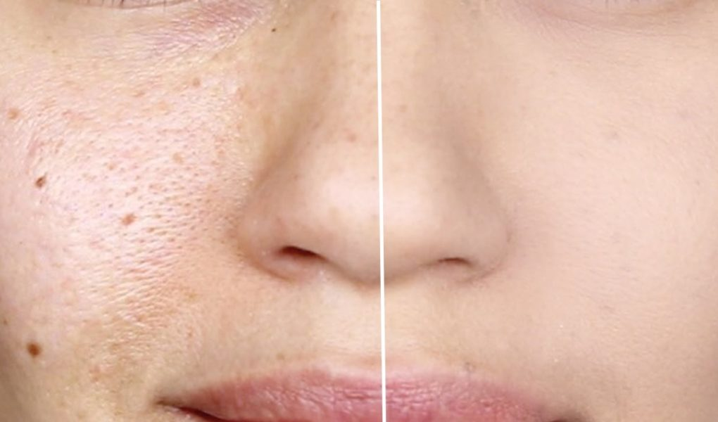Homemade Pore Tightening Face Masks