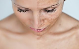 Home Remedies to treat Skin Pigmentation