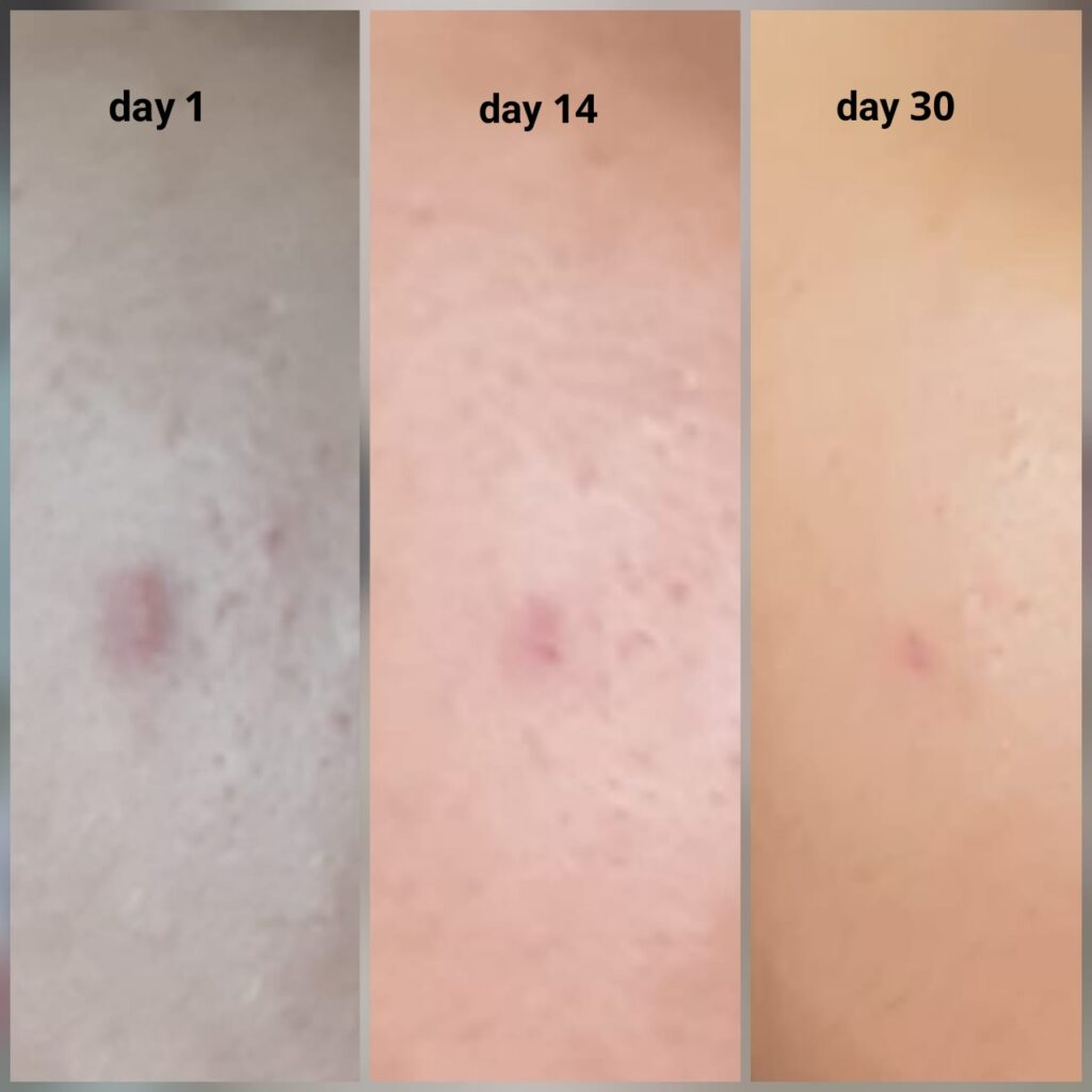 blemish and acne scar treatment